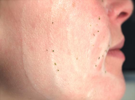 Masque aux herbes fraîches Blancrème